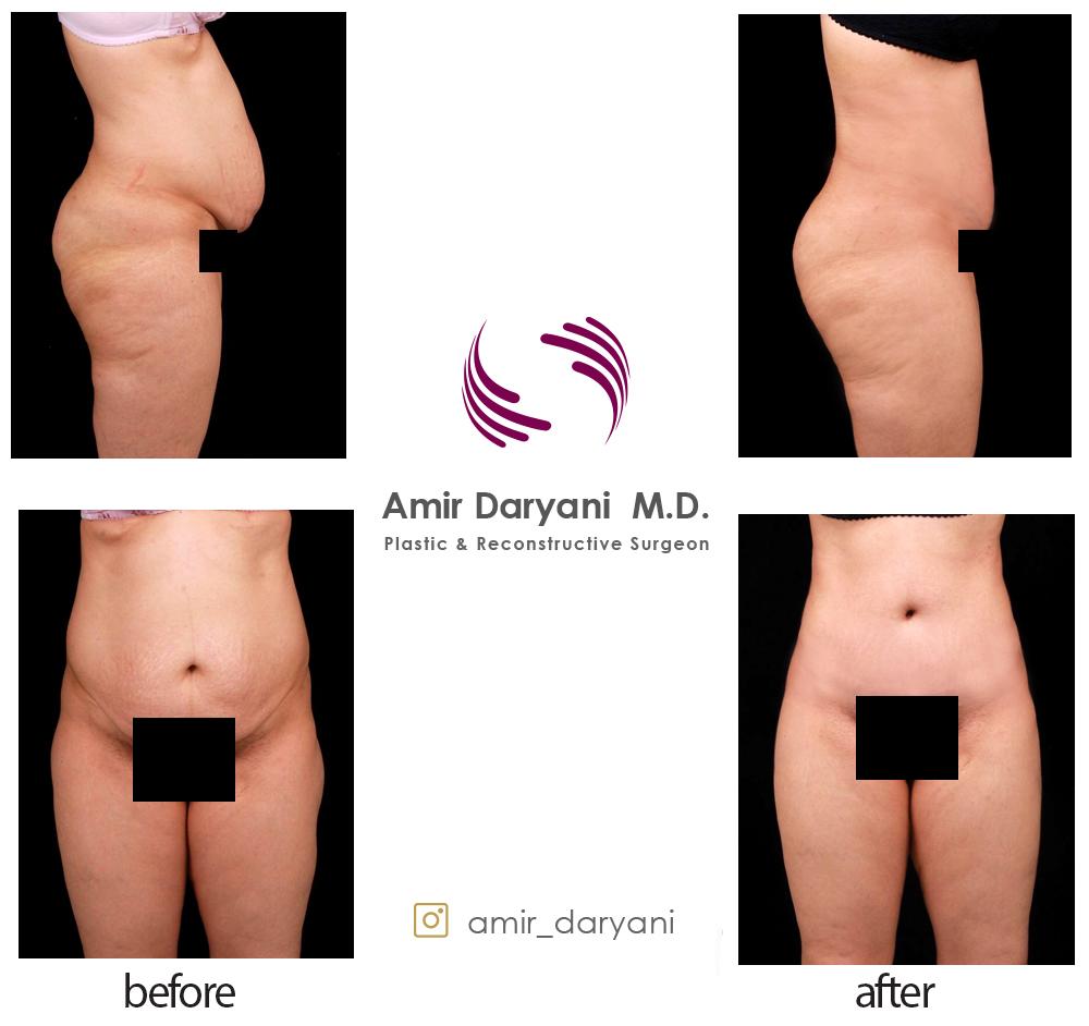 Abdominoplasty in IRAN