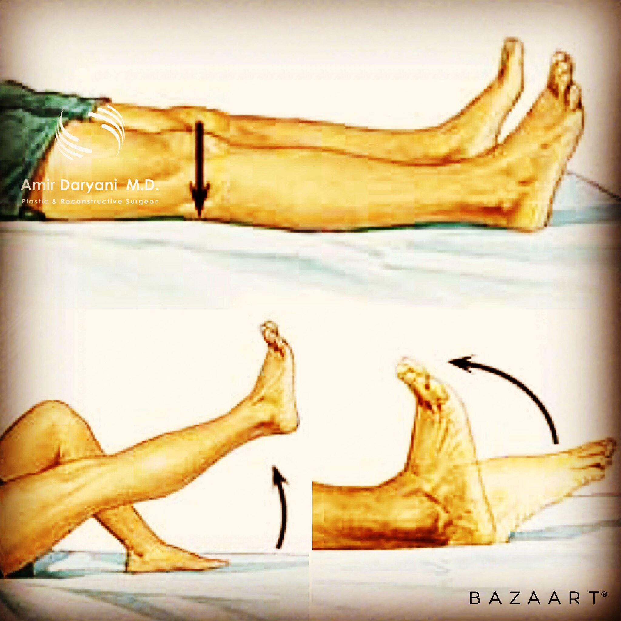 Foot exercise after abdominoplasty or liposuction