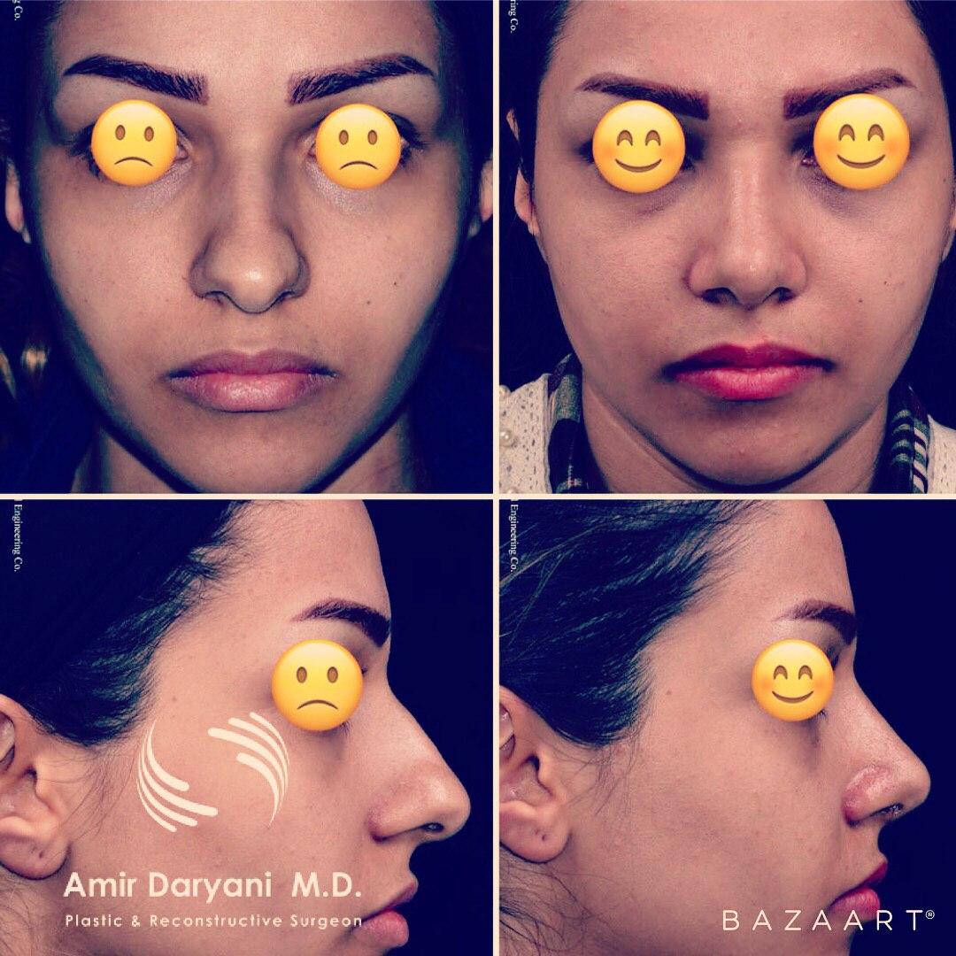جراحی زیبایی بینی یا رینوپلاستی در ایران